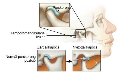 temporomandibularis izület gyulladása
